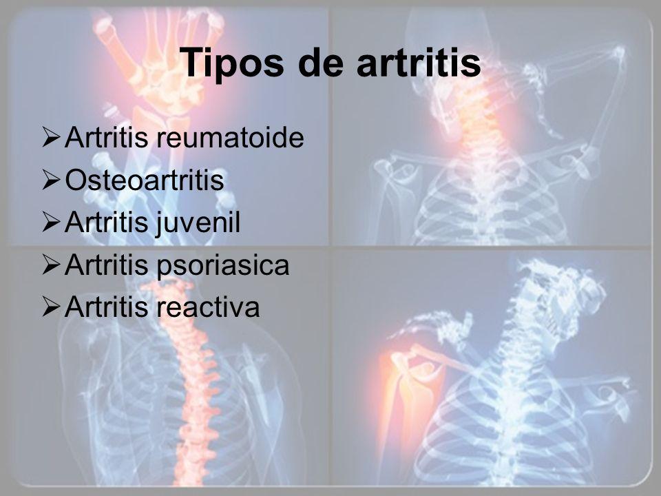 Tipos de artritis Artritis reumatoide Osteoartritis Artritis juvenil Artritis psoriasica Artritis reactiva