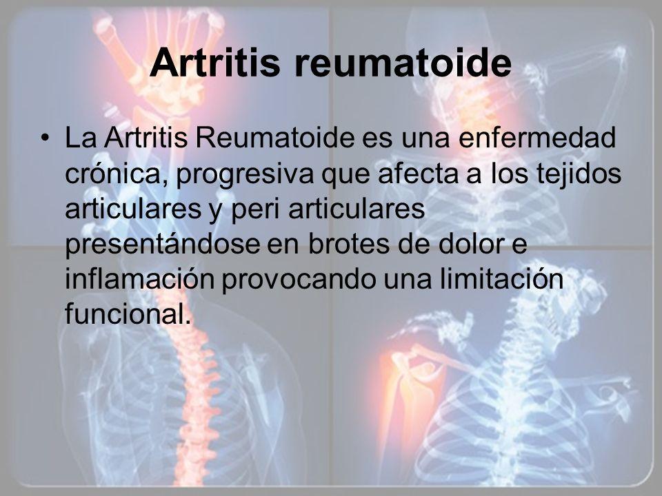 Artritis reumatoide La Artritis Reumatoide es una enfermedad crónica, progresiva que afecta a los tejidos articulares y peri articulares presentándose