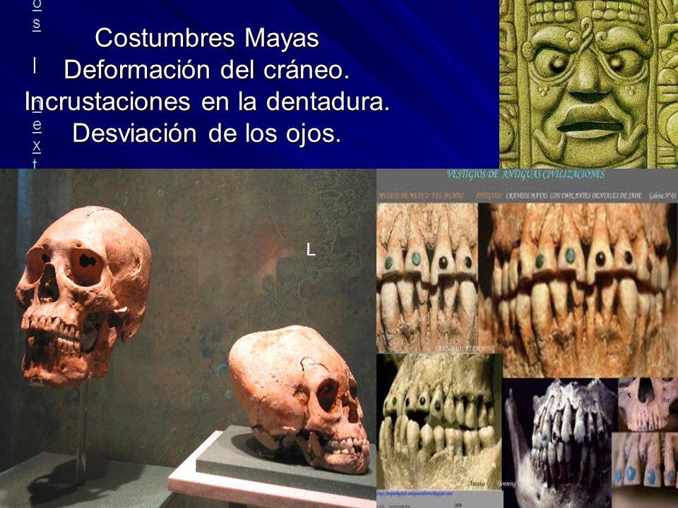Rafael MoctezumaRafael Moctezuma | all galleries >> Museo Nacional de Antropologia e Historia, Mexico DF > CRANEO NORMAL Y UN CRANEO MAYA all gallerie