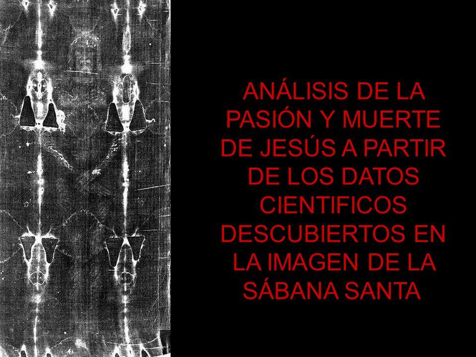 ANÁLISIS DE LA PASIÓN Y MUERTE DE JESÚS A PARTIR DE LOS DATOS CIENTIFICOS DESCUBIERTOS EN LA IMAGEN DE LA SÁBANA SANTA.
