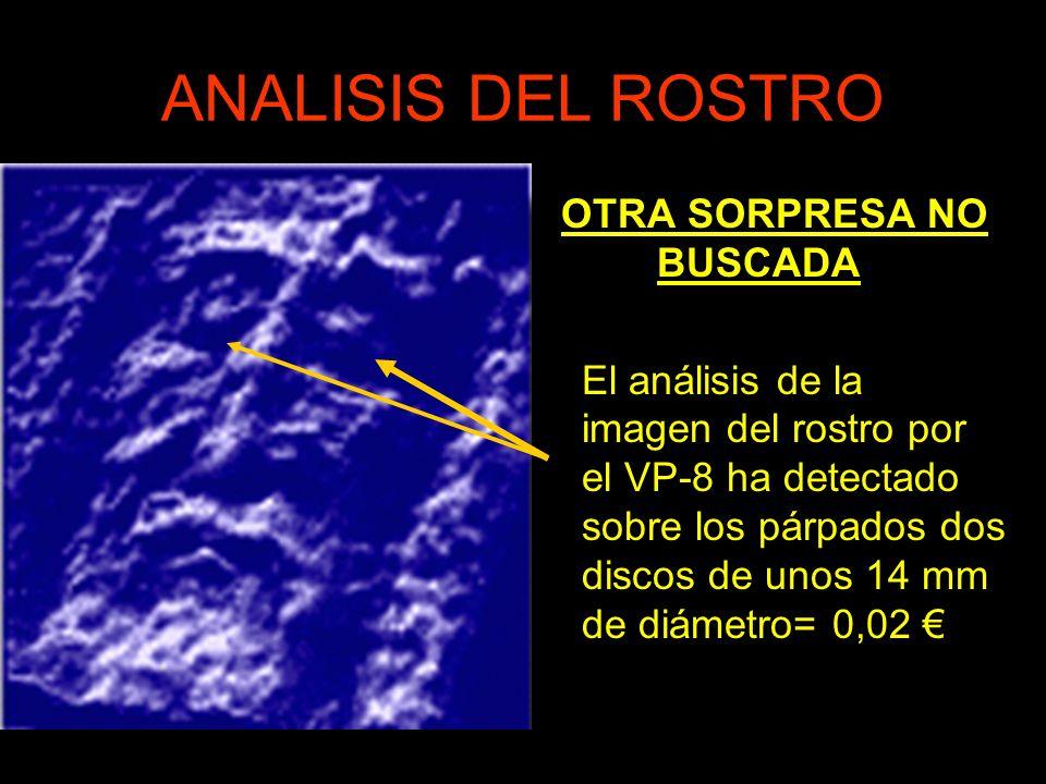 ANALISIS DEL ROSTRO OTRA SORPRESA NO BUSCADA El análisis de la imagen del rostro por el VP-8 ha detectado sobre los párpados dos discos de unos 14 mm de diámetro= 0,02