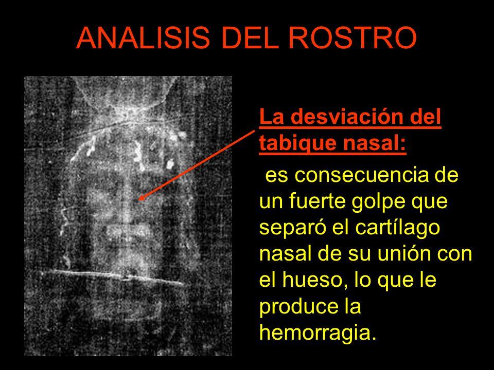 ANALISIS DEL ROSTRO La desviación del tabique nasal: es consecuencia de un fuerte golpe que separó el cartílago nasal de su unión con el hueso, lo que le produce la hemorragia.