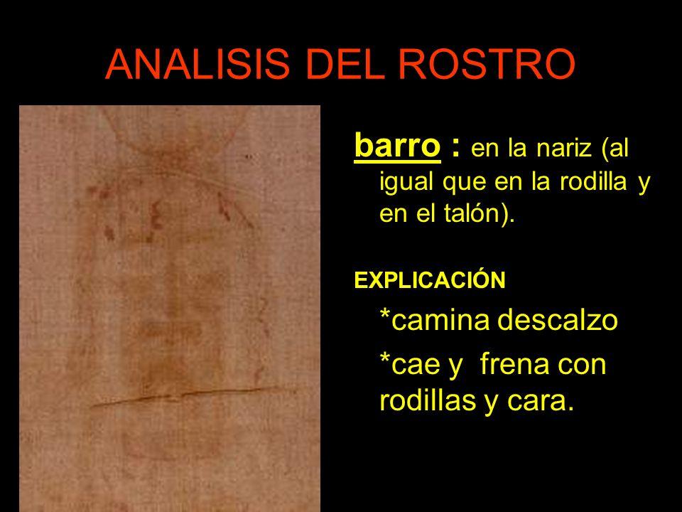 ANALISIS DEL ROSTRO barro : en la nariz (al igual que en la rodilla y en el talón).