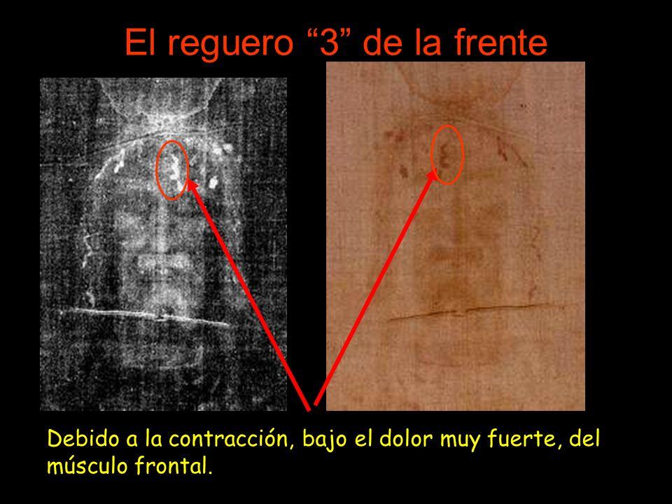 El reguero 3 de la frente Debido a la contracción, bajo el dolor muy fuerte, del músculo frontal.