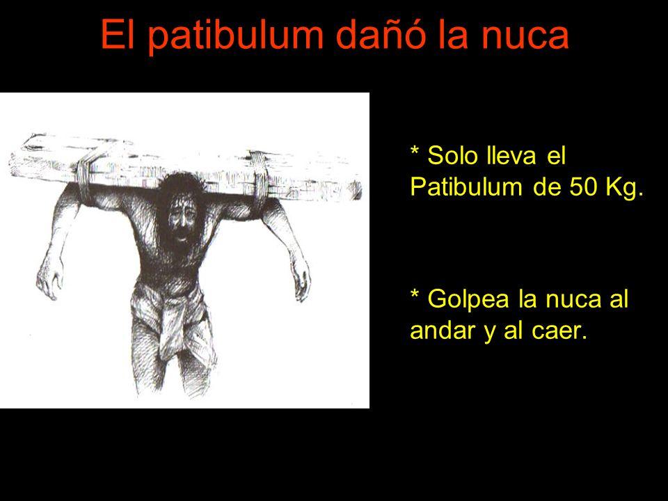 El patibulum dañó la nuca * Solo lleva el Patibulum de 50 Kg. * Golpea la nuca al andar y al caer.