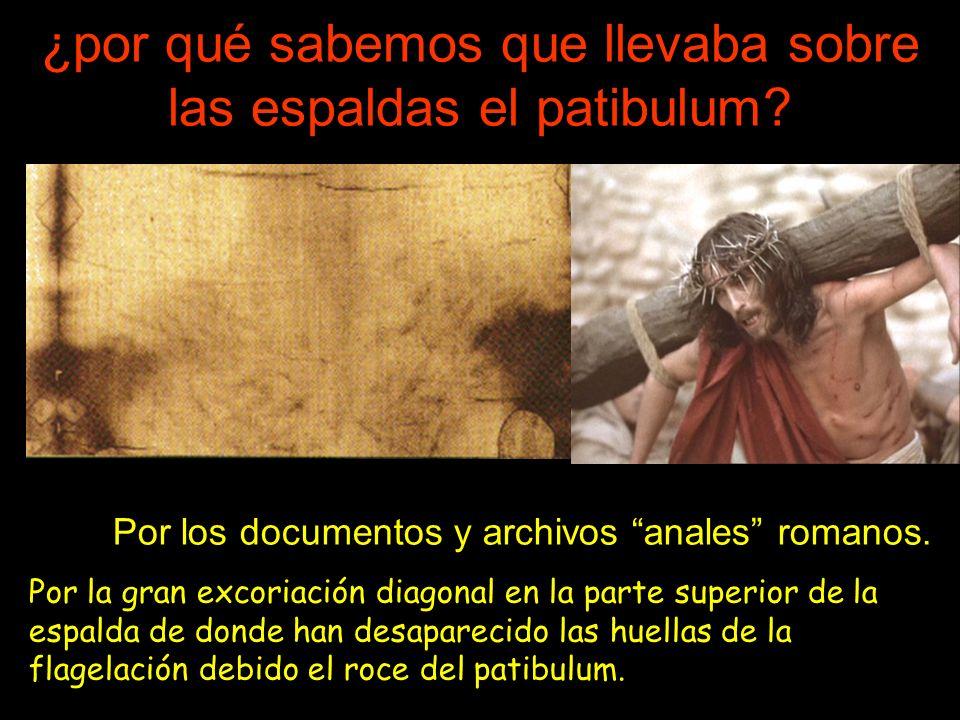 ¿por qué sabemos que llevaba sobre las espaldas el patibulum?. Por los documentos y archivos anales romanos. Por la gran excoriación diagonal en la pa