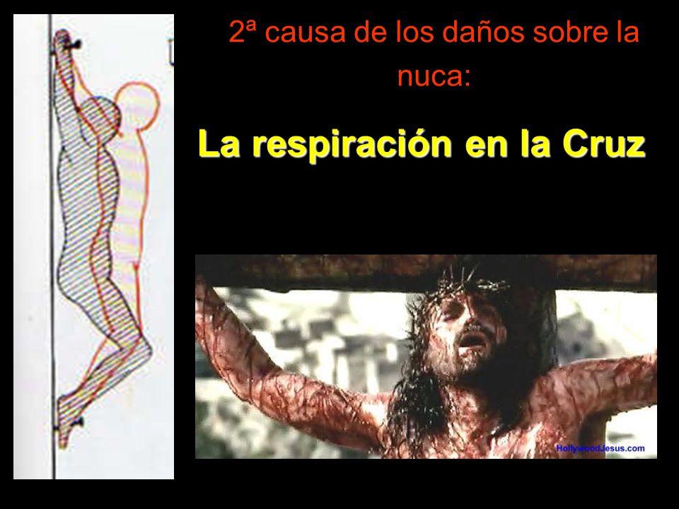 2ª causa de los daños sobre la nuca: La respiración en la Cruz