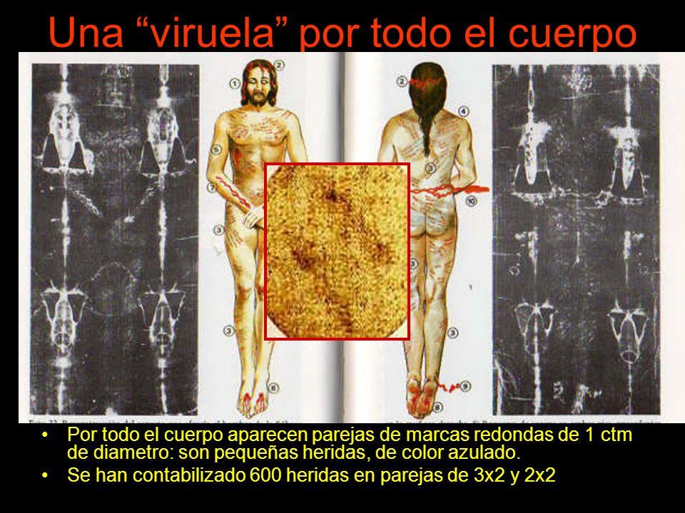 Una viruela por todo el cuerpo Por todo el cuerpo aparecen parejas de marcas redondas de 1 ctm de diametro: son pequeñas heridas, de color azulado.
