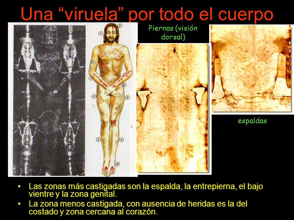 Una viruela por todo el cuerpo Las zonas más castigadas son la espalda, la entrepierna, el bajo vientre y la zona genital.
