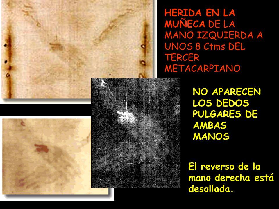 HERIDA EN LA MUÑECA DE LA MANO IZQUIERDA A UNOS 8 Ctms DEL TERCER METACARPIANO. NO APARECEN LOS DEDOS PULGARES DE AMBAS MANOS El reverso de la mano de
