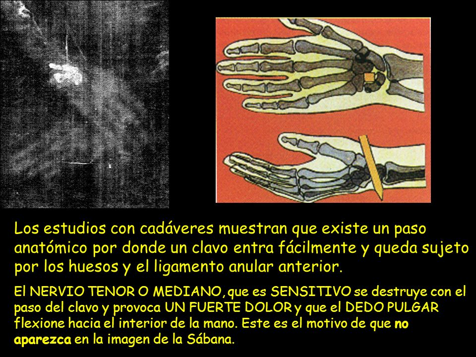 Los estudios con cadáveres muestran que existe un paso anatómico por donde un clavo entra fácilmente y queda sujeto por los huesos y el ligamento anular anterior.
