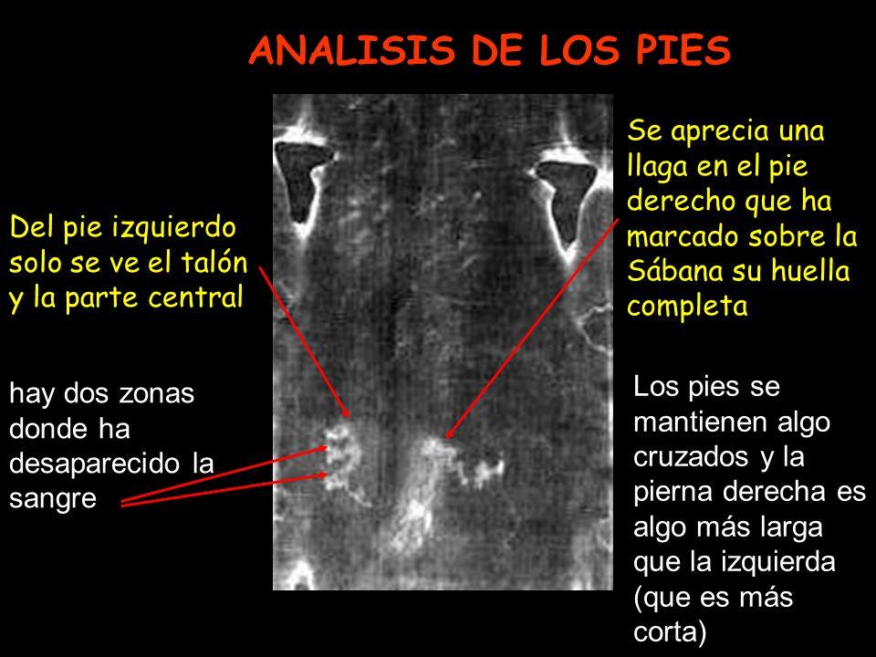 ANALISIS DE LOS PIES Se aprecia una llaga en el pie derecho que ha marcado sobre la Sábana su huella completa Del pie izquierdo solo se ve el talón y