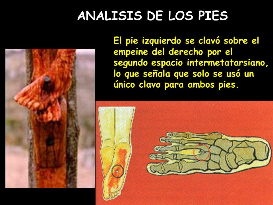 ANALISIS DE LOS PIES El pie izquierdo se clavó sobre el empeine del derecho por el segundo espacio intermetatarsiano, lo que señala que solo se usó un único clavo para ambos pies.