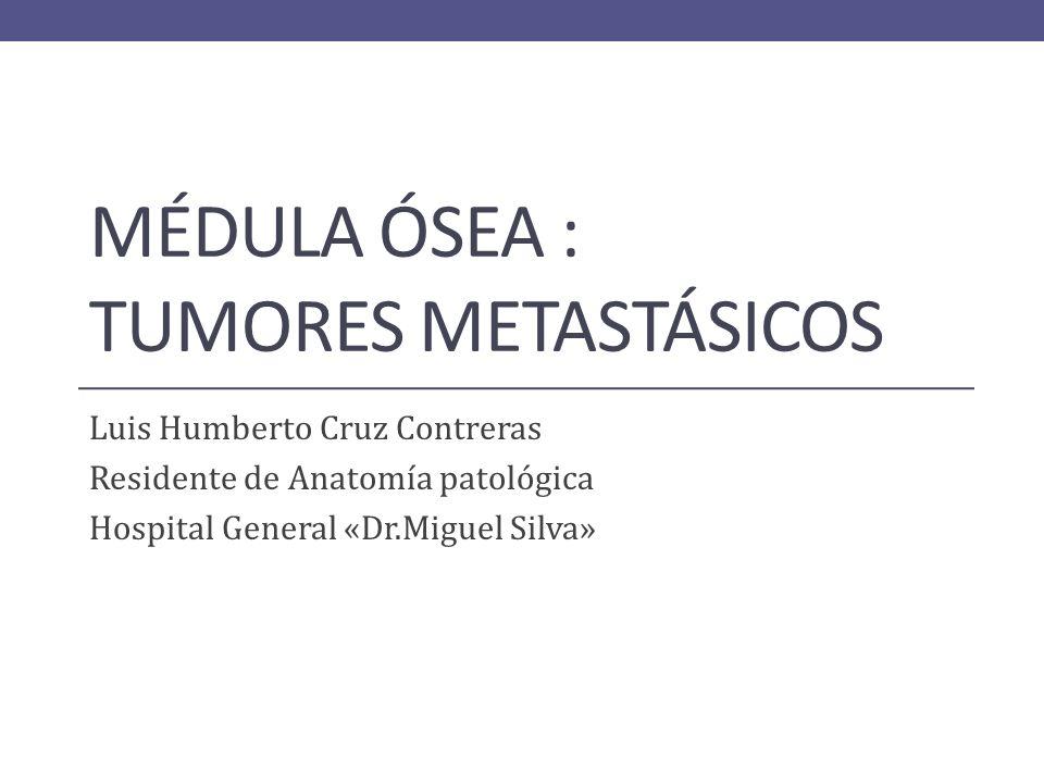 Biopsia MO. Donde se observa osteoesclerosis, fibrosis e invasión por cél. De carcinoma de mama.