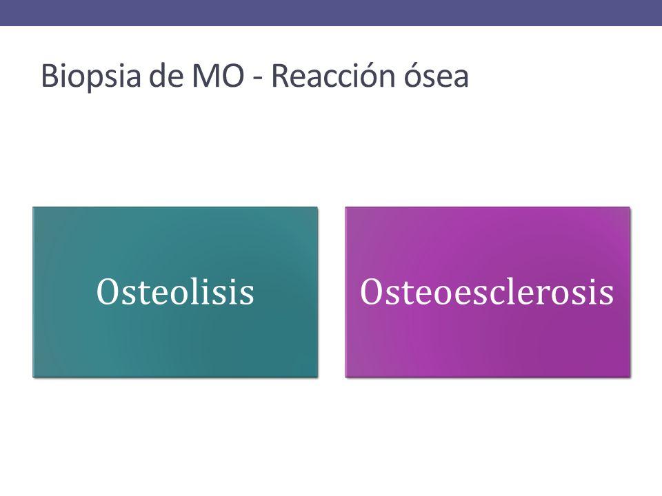 Biopsia de MO - Reacción ósea OsteolisisOsteoesclerosis
