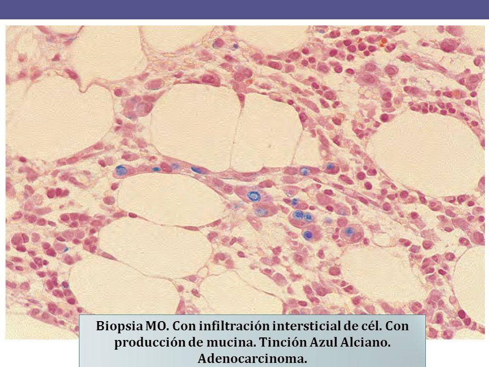 Biopsia MO.Con infiltración intersticial de cél. Con producción de mucina.