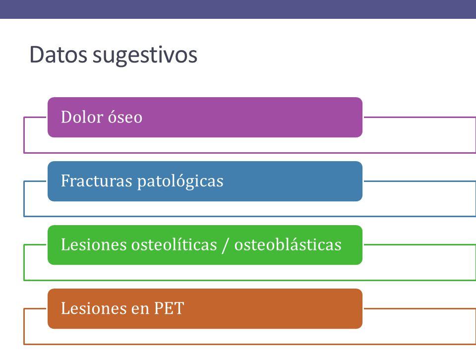Métodos Dx (Sensibilidad) BiopsiaAspirado