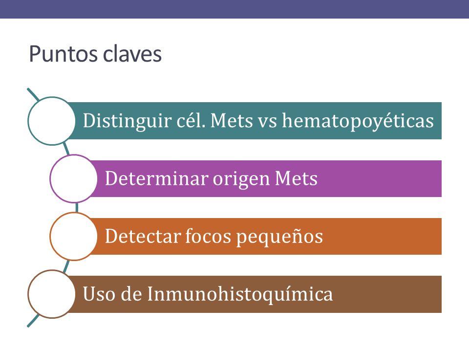 Infiltración en adenocarcinoma de colon. Formación de estructuras vellosas y glandulares.