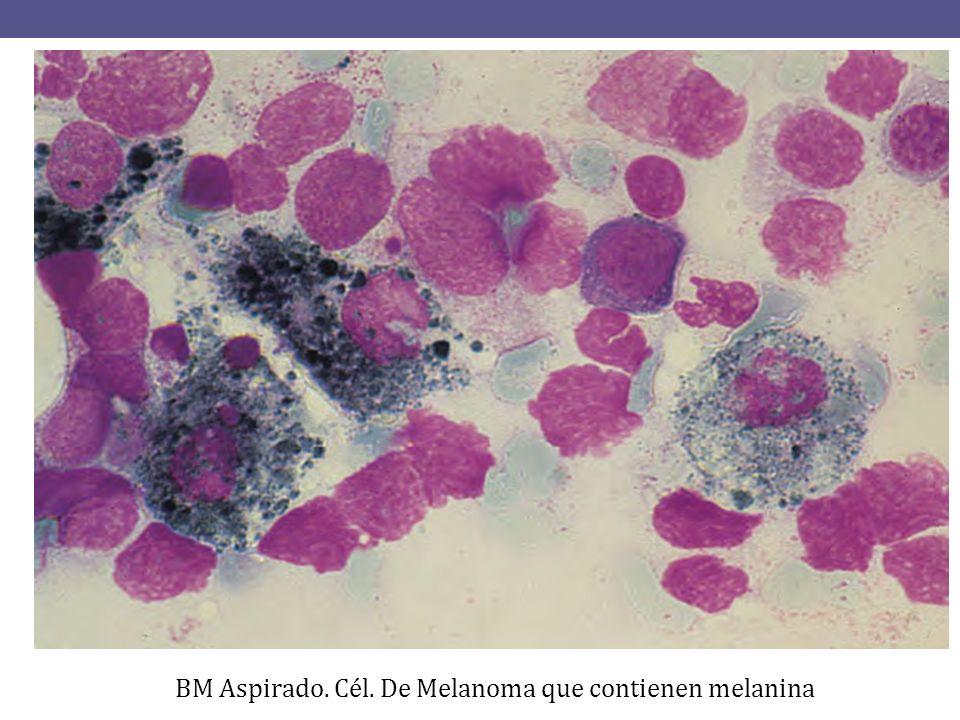 BM Aspirado. Cel. De Neuroblastoma