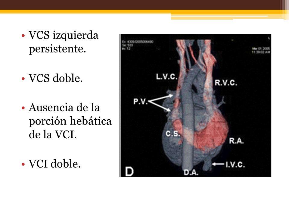 VCS izquierda persistente. VCS doble. Ausencia de la porción hebática de la VCI. VCI doble.