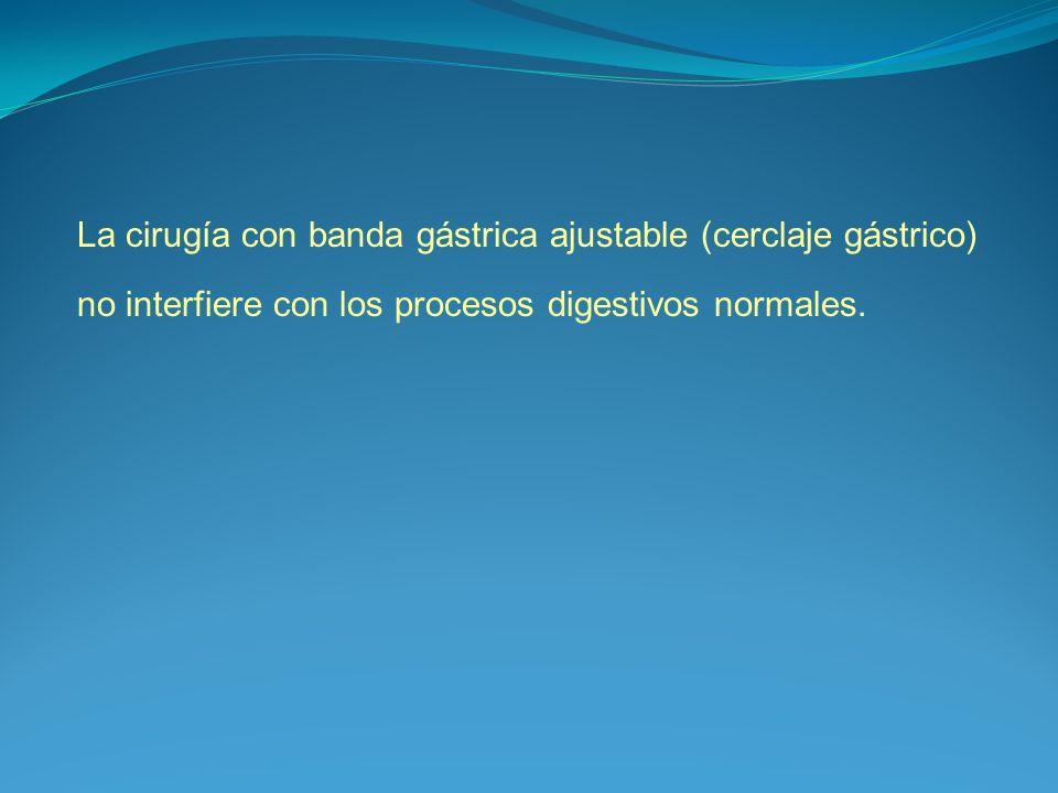 La cirugía con banda gástrica ajustable (cerclaje gástrico) no interfiere con los procesos digestivos normales.