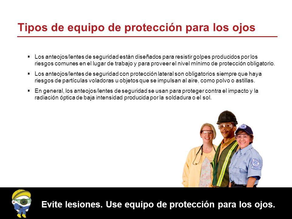 Proteger los ojos también es parte de su negocio.