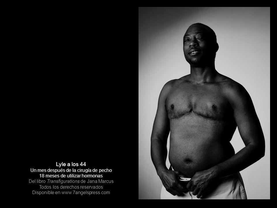 Lyle a los 44 Un mes después de la cirugía de pecho 18 meses de utilizar hormonas Del libro Transfigurations de Jana Marcus Todos los derechos reserva