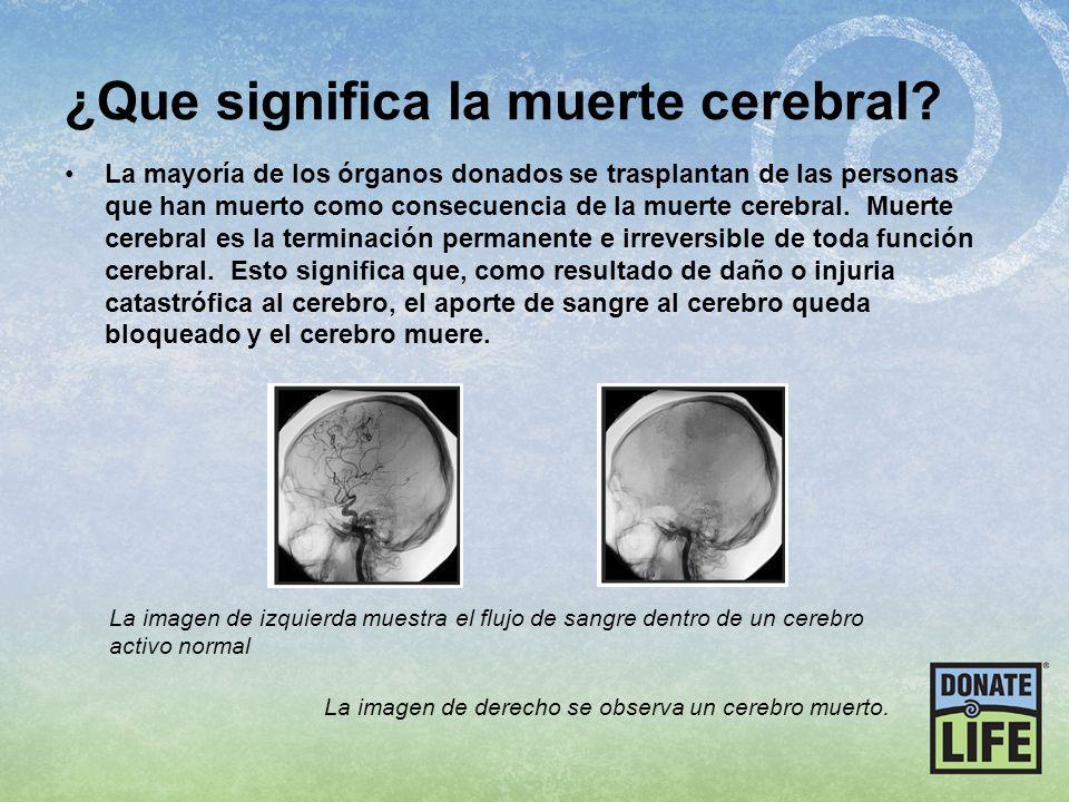 ¿Que significa la muerte cerebral? La mayoría de los órganos donados se trasplantan de las personas que han muerto como consecuencia de la muerte cere