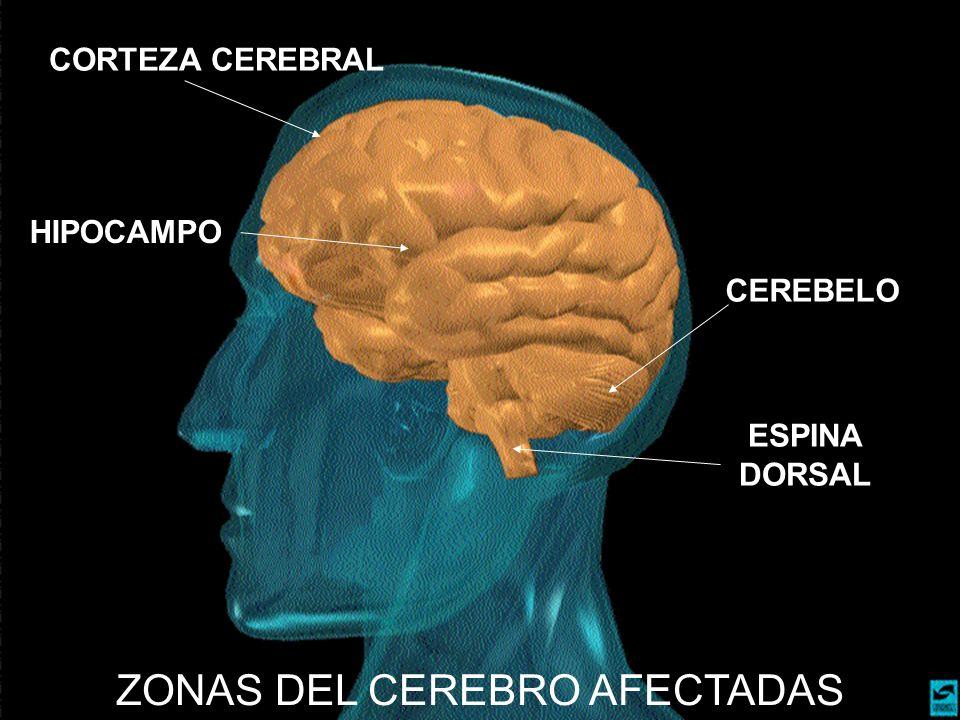 CORTEZA CEREBRAL CEREBELO HIPOCAMPO ESPINA DORSAL ZONAS DEL CEREBRO AFECTADAS