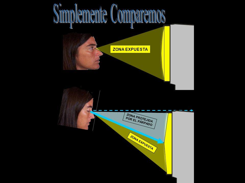 Acerca de los lentes Las personas que deben usar anteojos no siempre los tienen adecuados a la distancia respecto de la pantalla, cosa que deben resolver con su oftalmólogo.