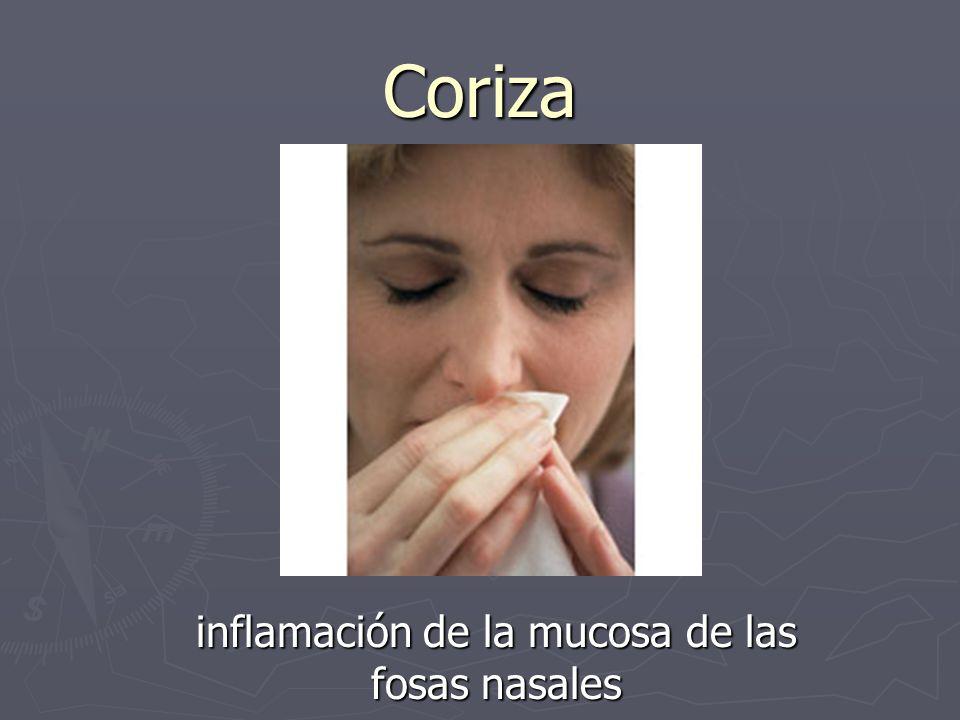 Coriza inflamación de la mucosa de las fosas nasales