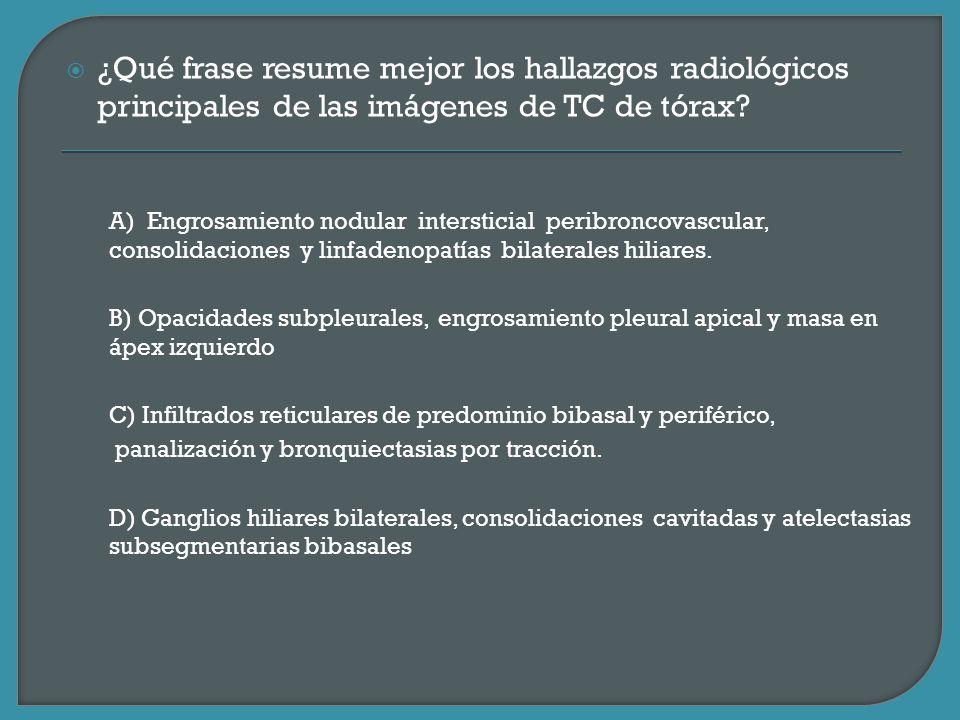 ¿Qué frase resume mejor los hallazgos radiológicos principales de las imágenes de TC de tórax? A) Engrosamiento nodular intersticial peribroncovascula