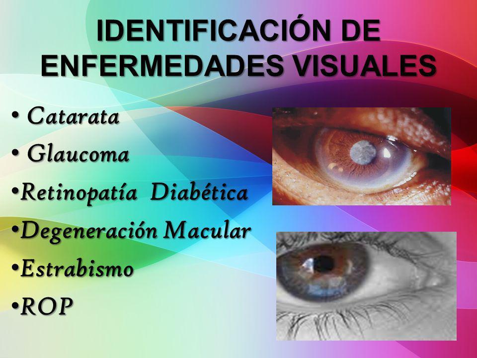 IDENTIFICACIÓN DE ENFERMEDADES VISUALES Catarata Catarata Glaucoma Glaucoma Retinopatía Diabética Retinopatía Diabética Degeneración Macular Degenerac