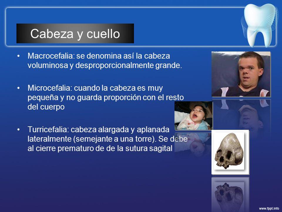 Macrocefalia: se denomina así la cabeza voluminosa y desproporcionalmente grande. Microcefalia: cuando la cabeza es muy pequeña y no guarda proporción