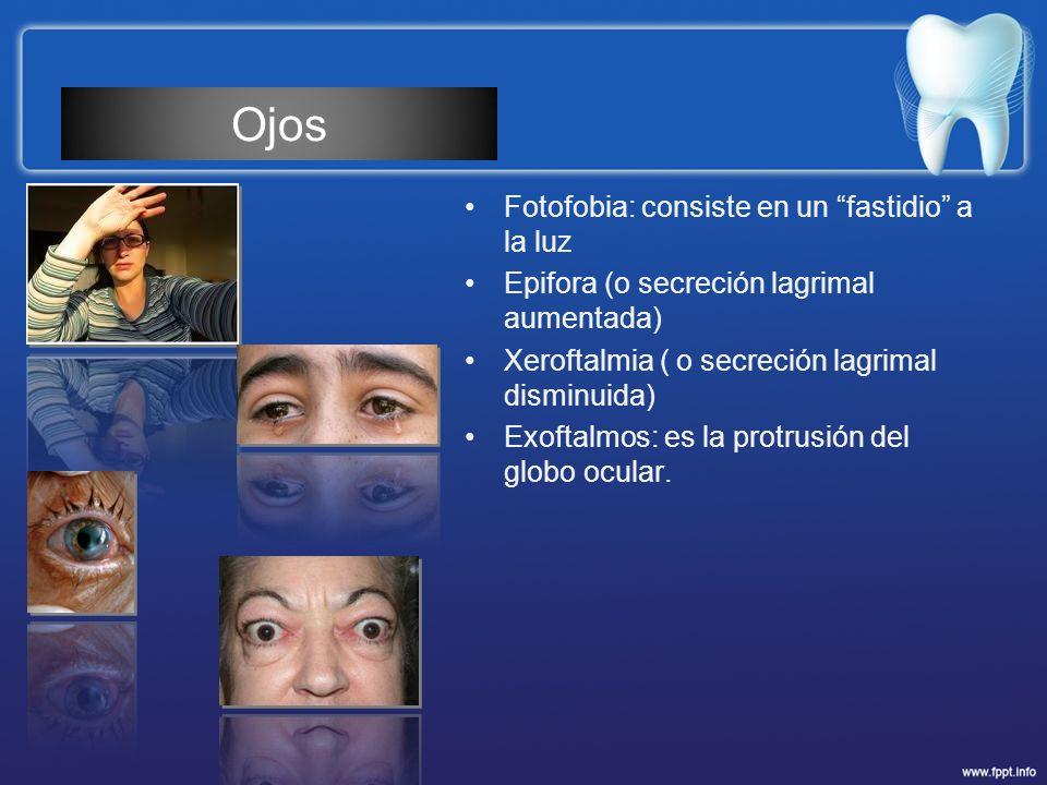 Fotofobia: consiste en un fastidio a la luz Epifora (o secreción lagrimal aumentada) Xeroftalmia ( o secreción lagrimal disminuida) Exoftalmos: es la