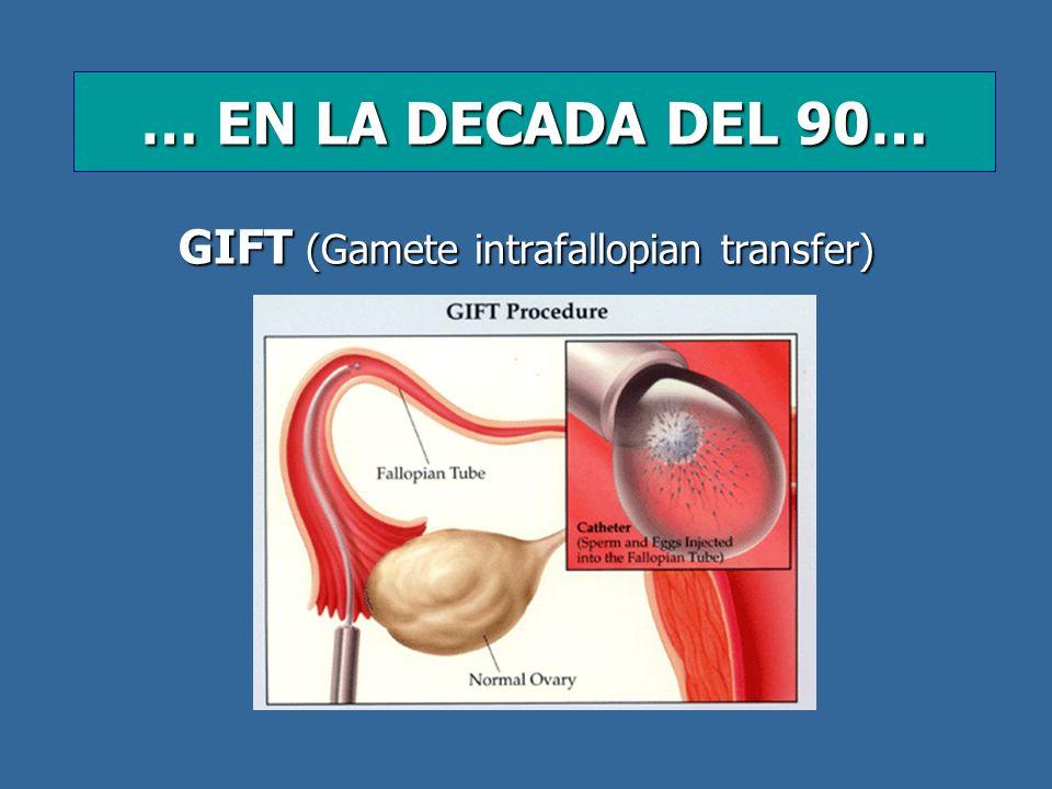 GIFT (Gamete intrafallopian transfer) … EN LA DECADA DEL 90…