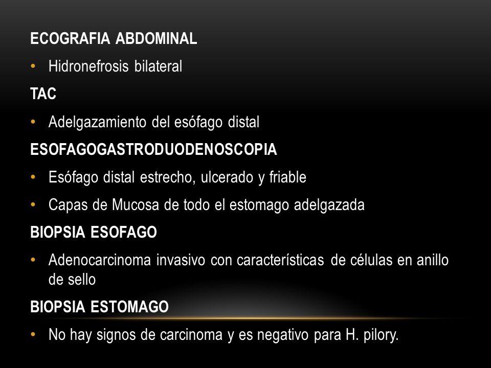 ECOGRAFIA ABDOMINAL Hidronefrosis bilateral TAC Adelgazamiento del esófago distal ESOFAGOGASTRODUODENOSCOPIA Esófago distal estrecho, ulcerado y friab