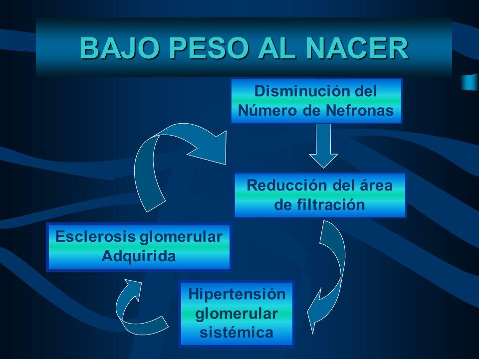 BAJO PESO AL NACER Reducción del área de filtración Hipertensión glomerular sistémica Esclerosis glomerular Adquirida BRENNER Y CHERTON, 1994. BAJO PE