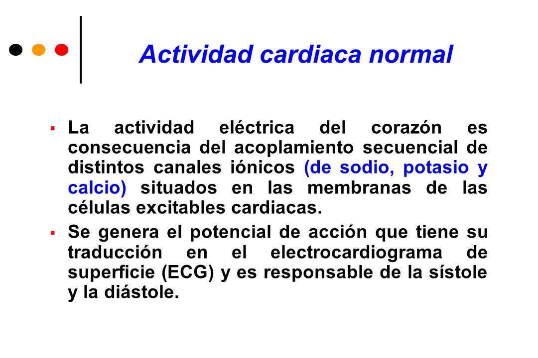 Síndrome de Brugada Patrones electrocardiográficos (ECG) Se conocen tres patrones ECG distintos: a) patrón tipo I, caracterizado por una elevación descendente del segmento ST 2 mm en más de una derivación precordial derecha (V1-V3), seguida de ondas T negativas.