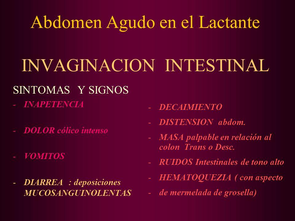 Abdomen Agudo en el Lactante INVAGINACION INTESTINAL SINTOMAS Y SIGNOS -INAPETENCIA -DOLOR cólico intenso -VOMITOS -DIARREA : deposiciones MUCOSANGUIN