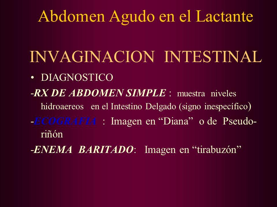 DIAGNOSTICO -RX DE ABDOMEN SIMPLE : muestra niveles hidroaereos en el Intestino Delgado (signo inespecífico ) -ECOGRAFIA : Imagen en Diana o de Pseudo