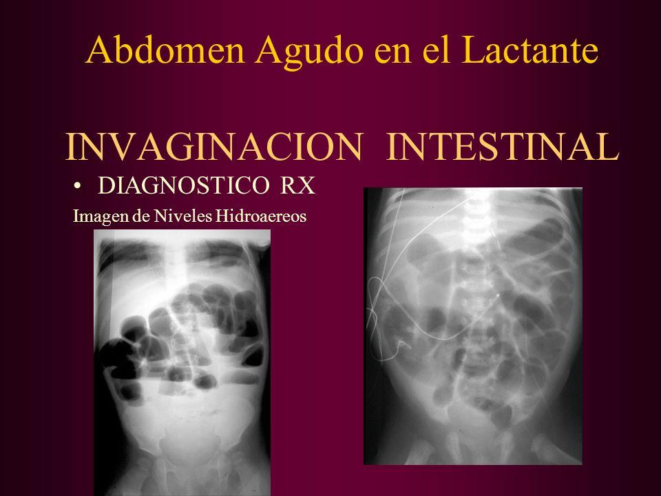 Abdomen Agudo en el Lactante INVAGINACION INTESTINAL DIAGNOSTICO RX Imagen de Niveles Hidroaereos
