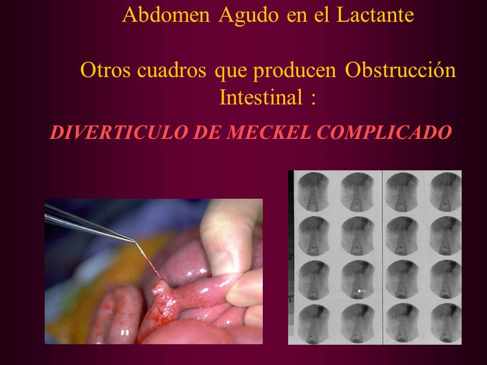 Abdomen Agudo en el Lactante Otros cuadros que producen Obstrucción Intestinal : DIVERTICULO DE MECKEL COMPLICADO