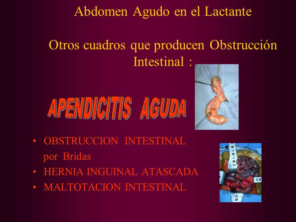 Abdomen Agudo en el Lactante Otros cuadros que producen Obstrucción Intestinal : OBSTRUCCION INTESTINAL por Bridas HERNIA INGUINAL ATASCADA MALTOTACIO