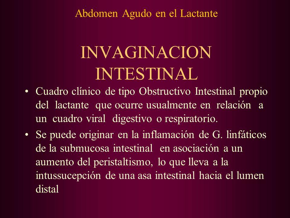 Abdomen Agudo en el Lactante INVAGINACION INTESTINAL Afecta usualmente el Intestino delgado : Invaginación Ileocólica Compromete mayoritariamente a lactantes menores; en pacientes > 1 año debe sospecharse una causa anatómica(tumor).