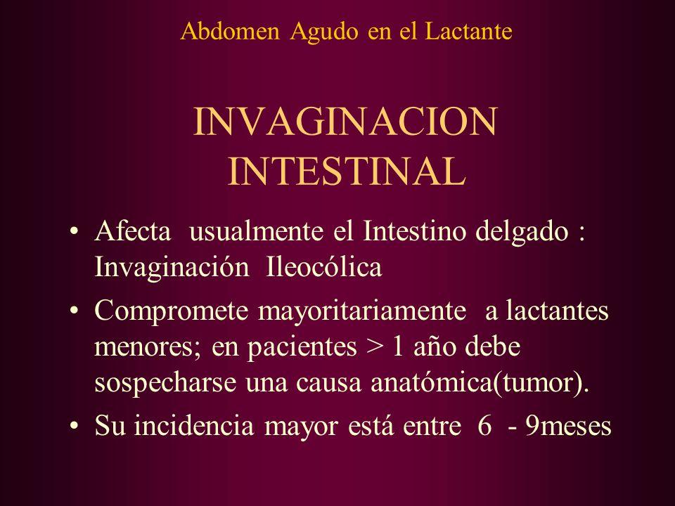 Abdomen Agudo en el Lactante INVAGINACION INTESTINAL Afecta usualmente el Intestino delgado : Invaginación Ileocólica Compromete mayoritariamente a la