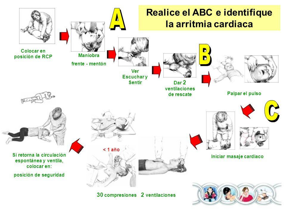 Colocar en posición de RCP Maniobra frente - mentón Ver Escuchar y Sentir Dar 2 ventilaciones de rescate Palpar el pulso Iniciar masaje cardiaco 30 co