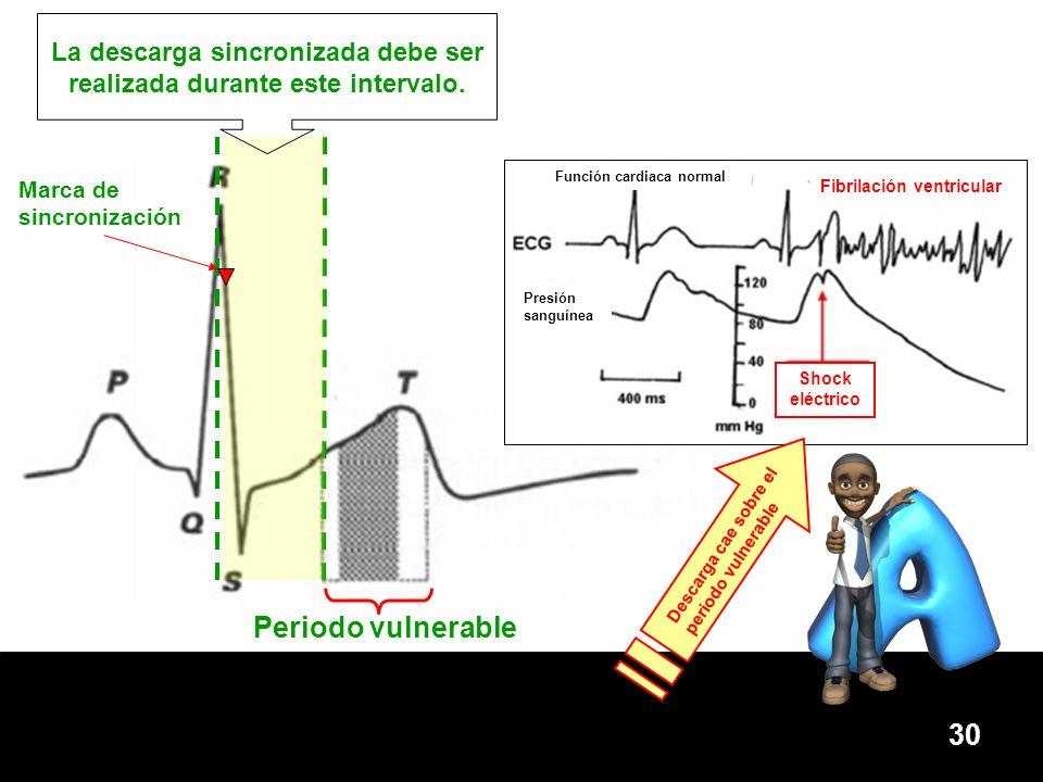 30 La descarga sincronizada debe ser realizada durante este intervalo. Periodo vulnerable Marca de sincronización Función cardiaca normal Fibrilación