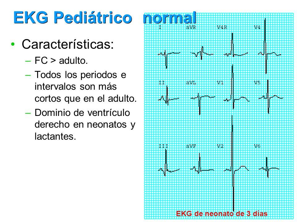 Características: –FC > adulto. –Todos los periodos e intervalos son más cortos que en el adulto. –Dominio de ventrículo derecho en neonatos y lactante