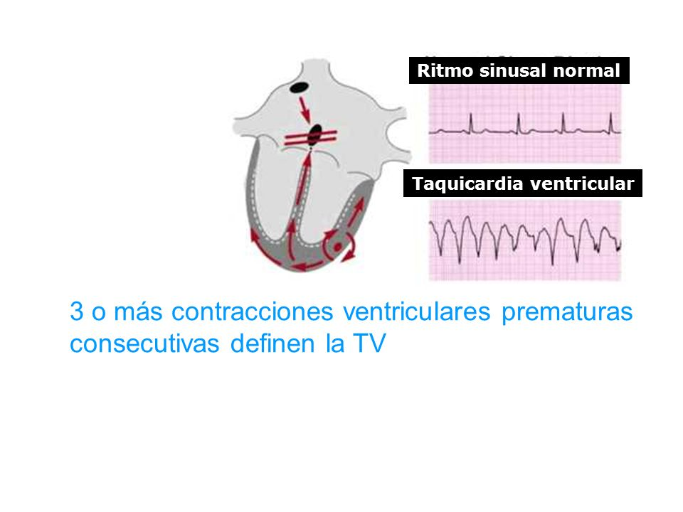 Ritmo sinusal normal Taquicardia ventricular 3 o más contracciones ventriculares prematuras consecutivas definen la TV